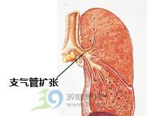 肺部化脓性感染