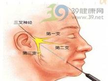 三叉神经一二支分布区域疼痛