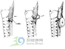 食管腔梗阻