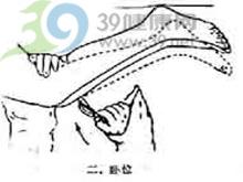 腱反射亢进