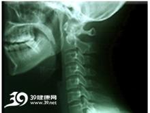 颈椎分节异常
