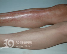手掌及足趾皮肤过度角化