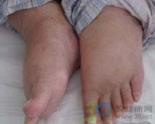 双下肢可凹陷性水肿