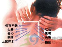 面肌及颈肌紧张