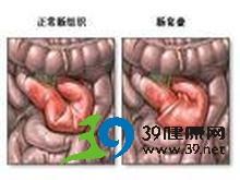 脐周阵发性绞痛