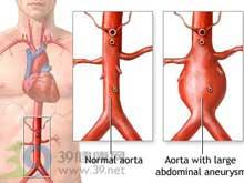 脑血管动静脉畸形