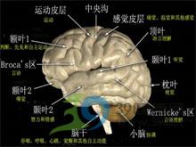 脑细胞出现营养不良性蜕变