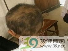 肿瘤性脱发