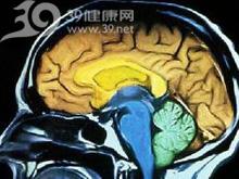 脑神经麻痹
