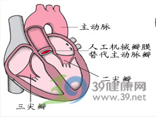心瓣膜病变