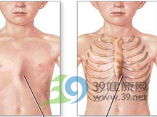 儿童胸廓变形