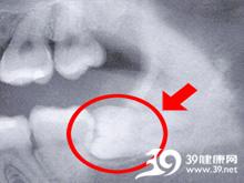 牙齿萌出疼痛