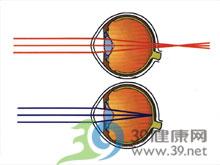 远视屈光度数增加