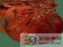 高同型半胱氨酸血症