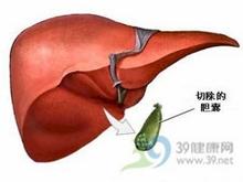 胆汁排泄受阻