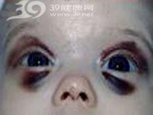 眼睑肿胀且呈淡绿色