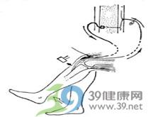 膝腱反射消失