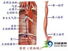 食管气管瘘