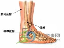 踝关节屈曲挛缩畸形