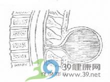 硬脊膜膨出