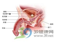 泌尿道狭窄