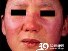双上眼睑的水肿性紫红色斑