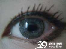 瞳孔出现黄白色反光