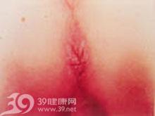 肛周皮肤有湿疹