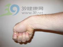 桡骨茎突部局限性疼痛