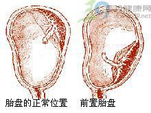 妊娠晚期或临产时无痛性反复阴道流血