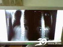 脊柱生理弯曲消失