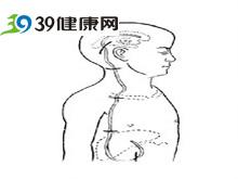 颈后及肩部皮肤发硬