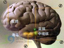 脑白质萎缩
