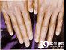 指甲、耳软骨出现褐色色素沉着