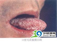 舌两侧边缘毛状白斑