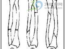 前臂和腕部的疼痛