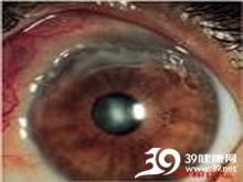 角膜干燥斑