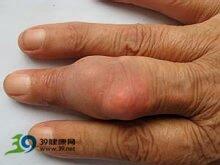 手指小关节痛肿