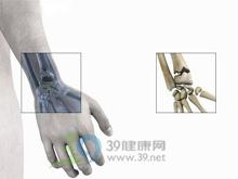 手腕肿痛及掌屈活动受限