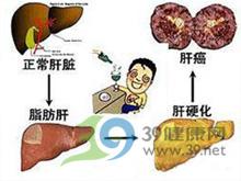 肝脏轻度脂肪变性