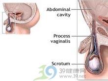 一侧阴囊内逐渐增大的无痛性肿块