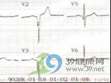 病理性Q波