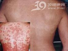 表皮全层坏死及表皮下大疱