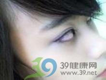 瞳孔中能见到白色反光