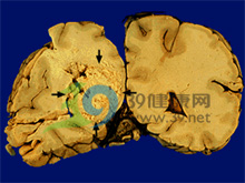 肝星状细胞增生