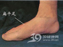 足底和足背浮肿