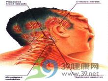 颈肩疲劳和软组织疼痛