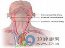 颈动脉搏动减弱或消失