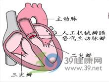 心包积液体征