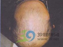 永久性秃发